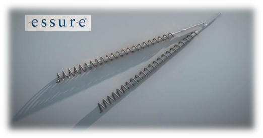 Essure Lawsuit: Woman Claims Perforation of Reproductive